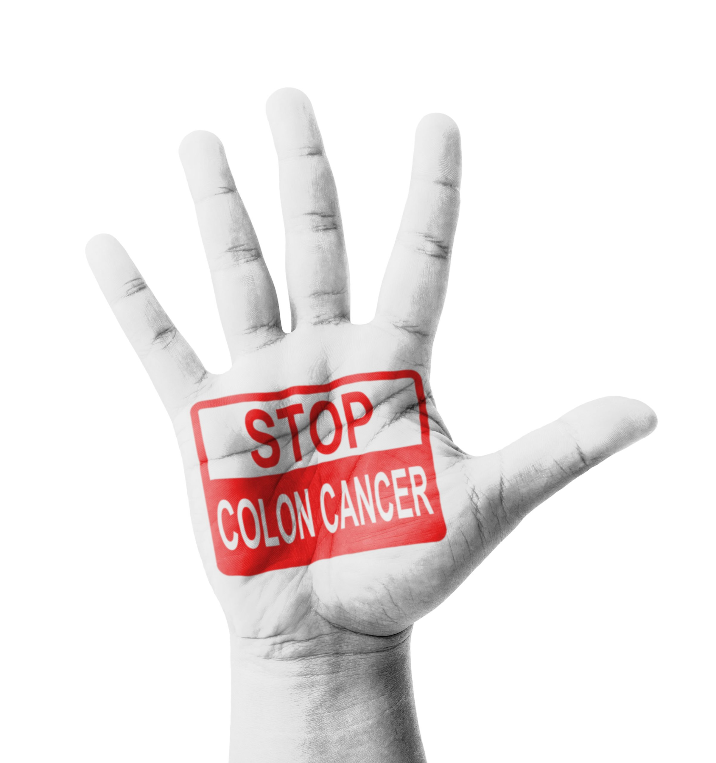 How You Can Prevent Colon Cancer